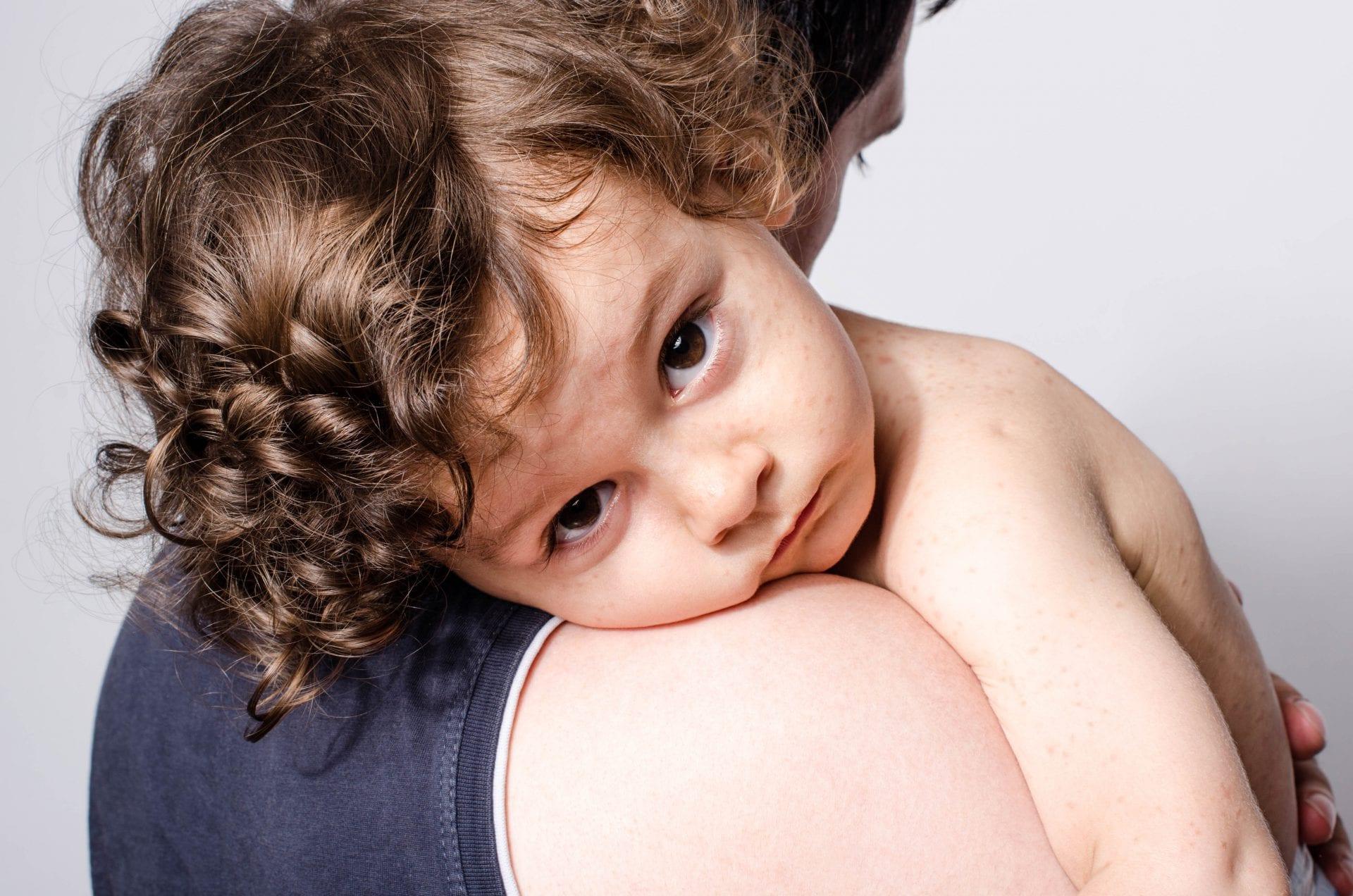 ריפלוקס אצל תינוקות